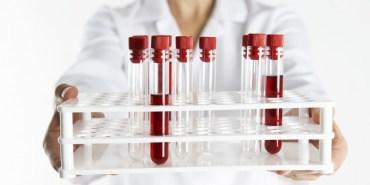 Analyse test de ferritine