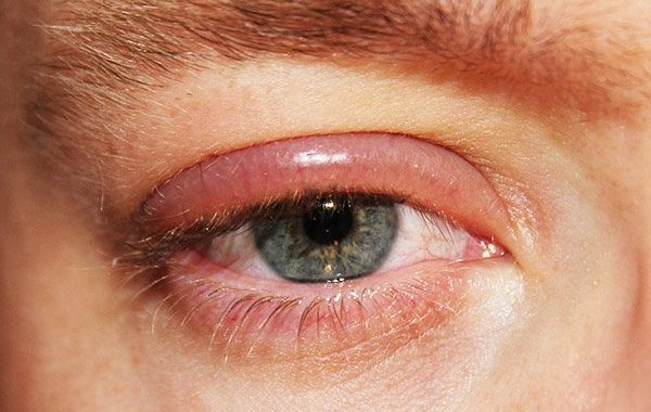 Inflammation des paupières (blépharite)