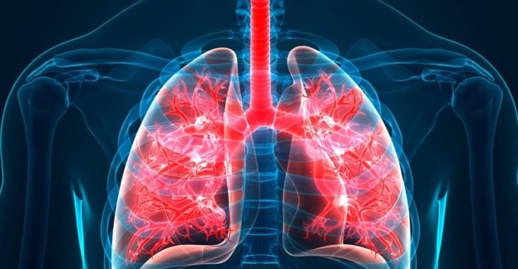 fibrose pulmonaire traitement naturel
