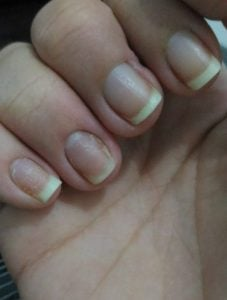 Unhas afetadas pela dermatite