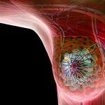 Diagnóstico temprano del cáncer, salva vidas