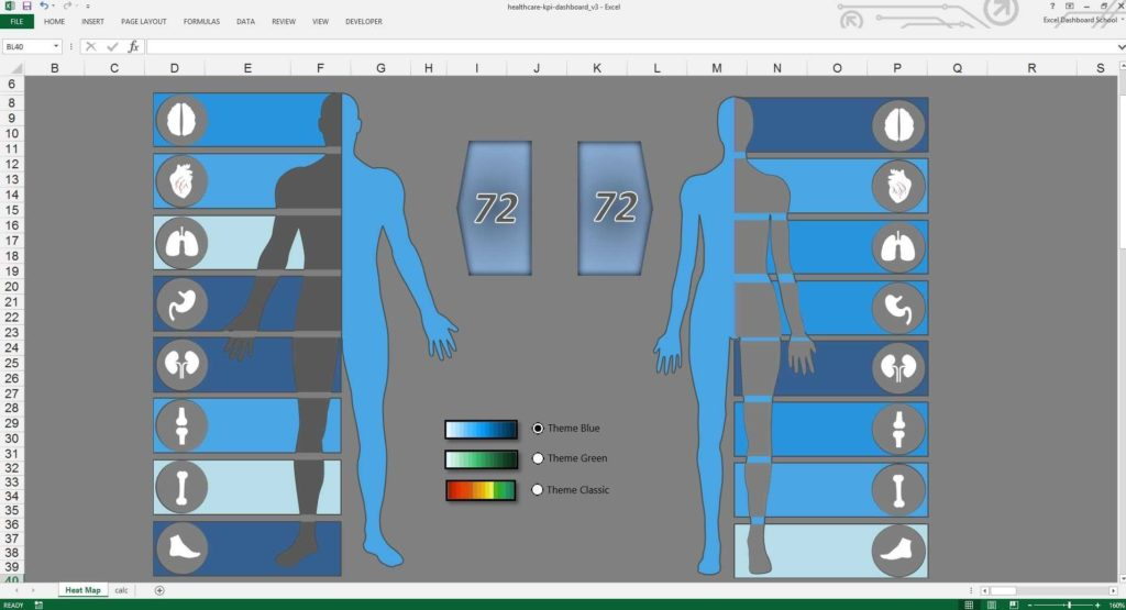 Examples Of Dashboards In Excel and Excel Healthcare Kpi Dashboard Free Excel Template Youtube