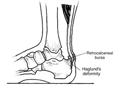Achilles Tendon