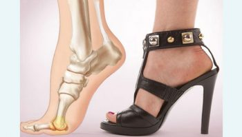 spinal-cord-caused-by-the-use-of-high-heels-for-women