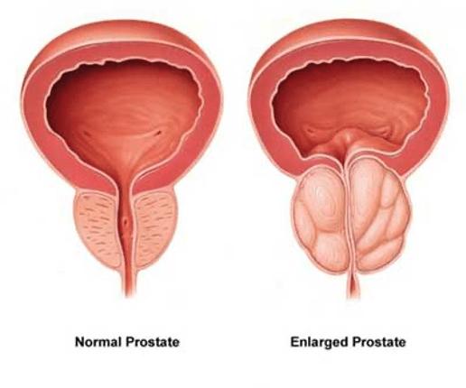 ProstaStream-supplement.jpg