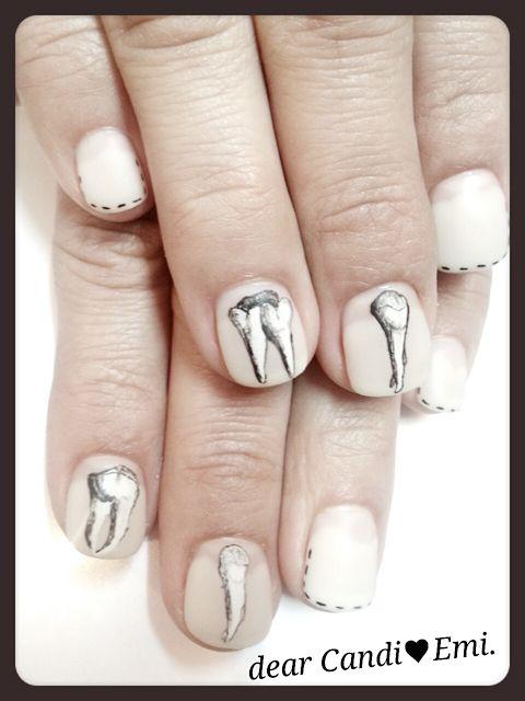 Naglar tandvård