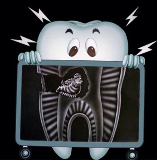 xray tooth