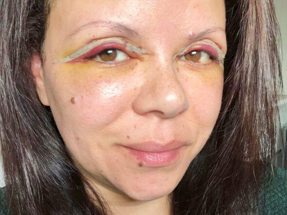 zwelling oogleden na ooglidcorrectie