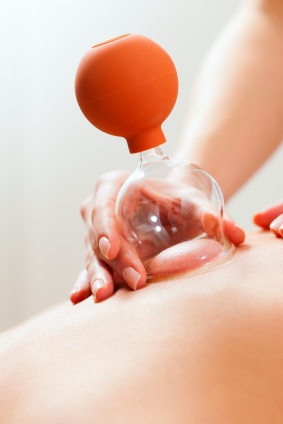 therapist massage cupping a client