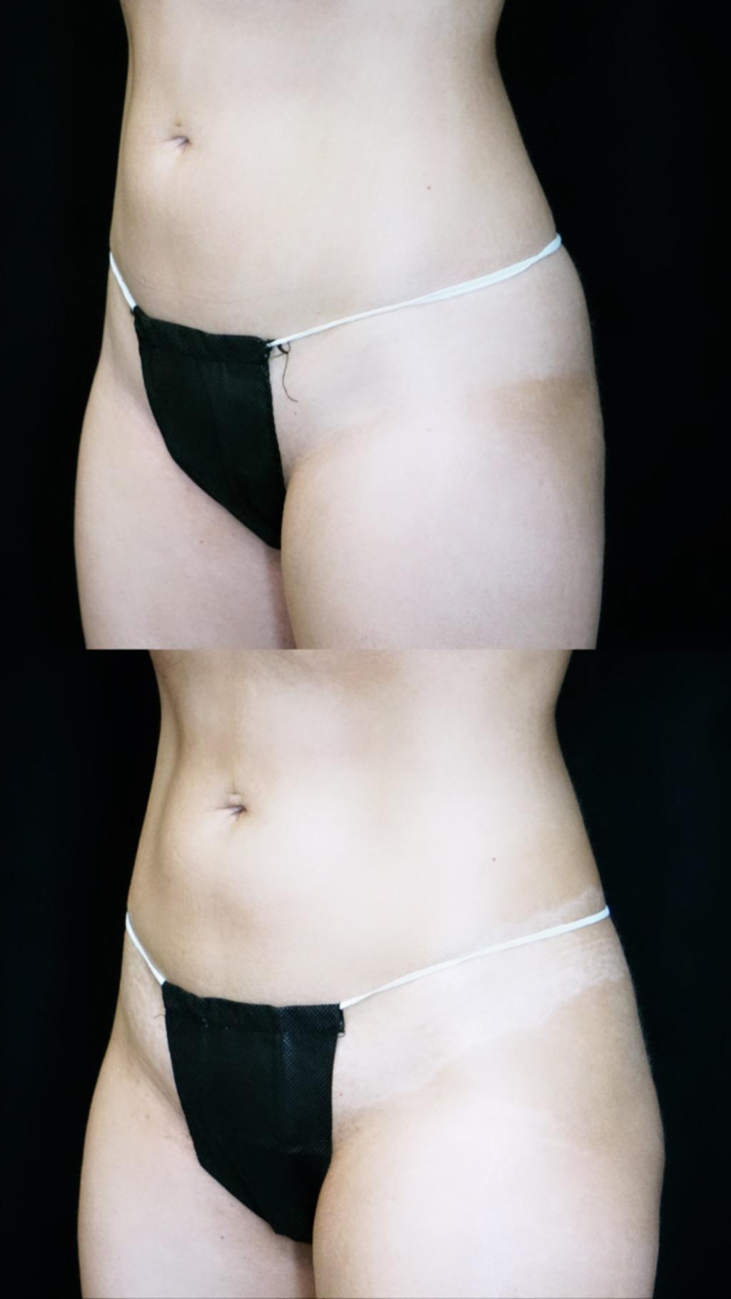 emsculpt abdomen