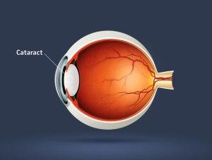Причины образования катаракты - тарус
