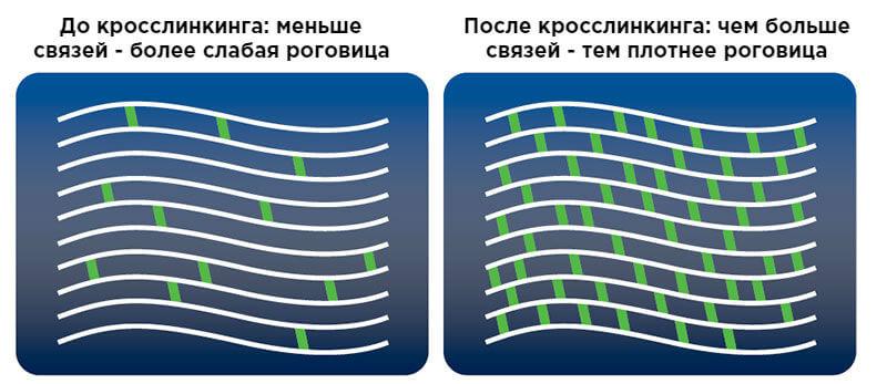 Кросс-линкинг роговицы: до и после