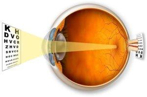 Лікування далекозорісті -Тарус