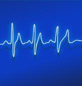 heart monitor line