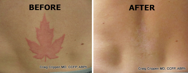 get rid tattoo easy: saline tattoo removal before and after