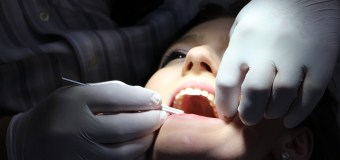 Wisdom Tooth Removal in Dubai
