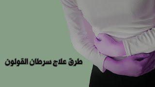 طرق علاج سرطان القولون