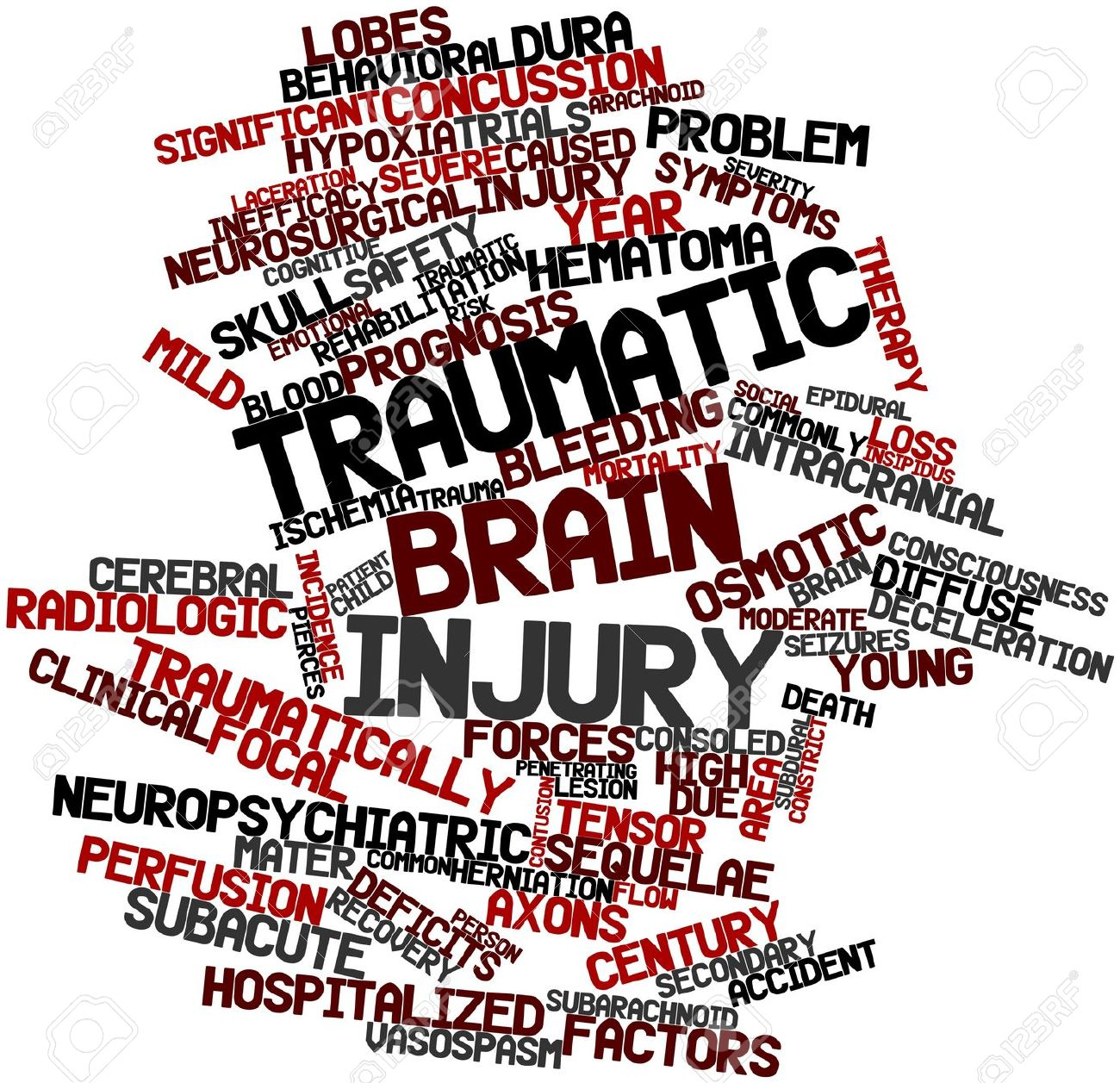 Important Facts about a Traumatic Brain Injury