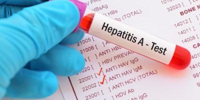 Hepatitis A   Health   Health Care