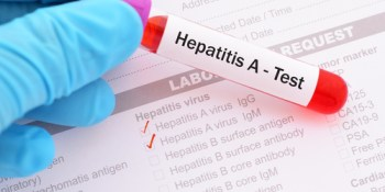 Hepatitis A | Disease | Health