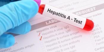 Hepatitis A | Disease | Health