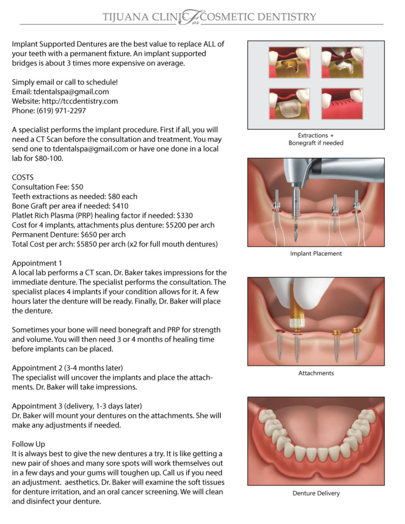 Implant Supported Dentures at the Tijuana Clinic for Cosmetic Dentistry with Dr. Shirley Baker DDS