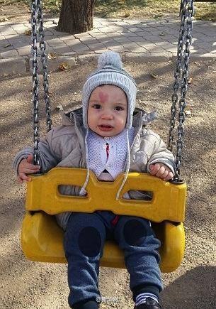 หายาก! เด็กน้อยตุรกี ผู้มีรอยปานเป็นรูปหัวใจแสนพิเศษ