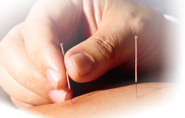 "Acupuncture - This is not ""new"" as it has been part of Chinese medical intervention eras ago"