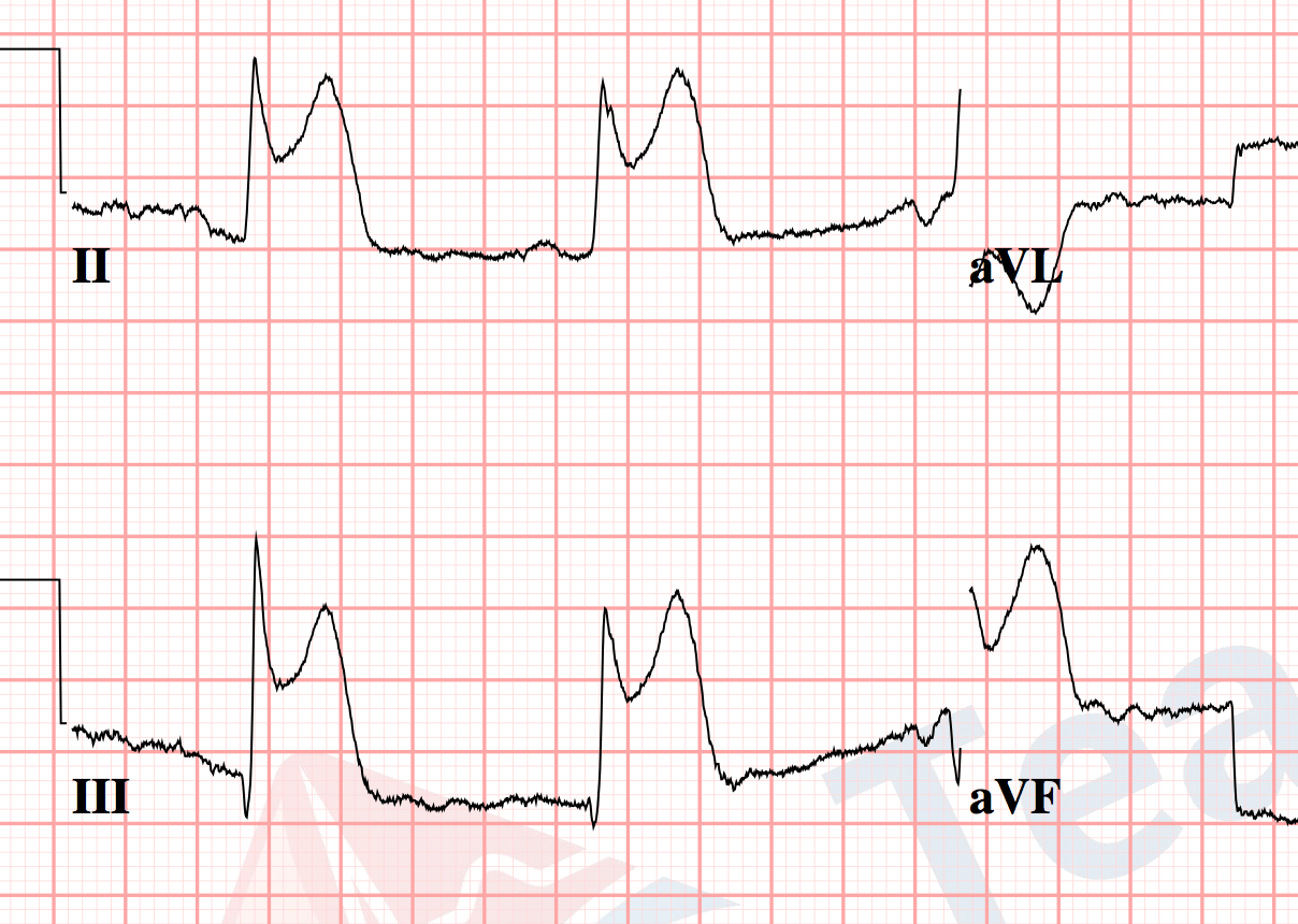 Ekg Practice Strips Printable With Answers