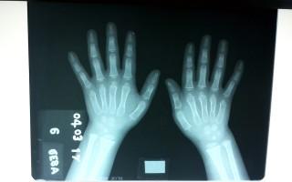 Imagen de rayos X.