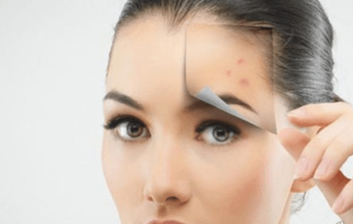 How To Get Rid Of Acne Effectively With Folk Remedies