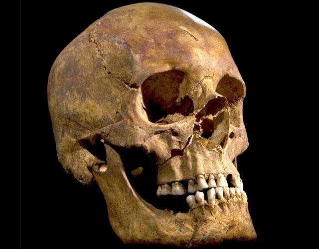 richad_iii_skull_.jpg