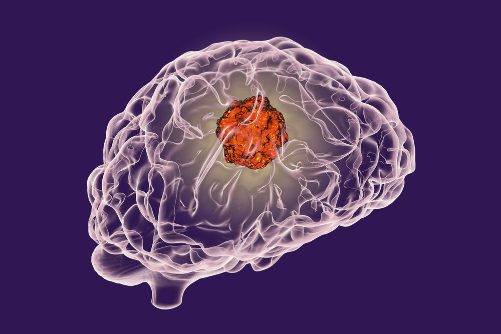 Noninvasive brain tumor biopsy on the horizon