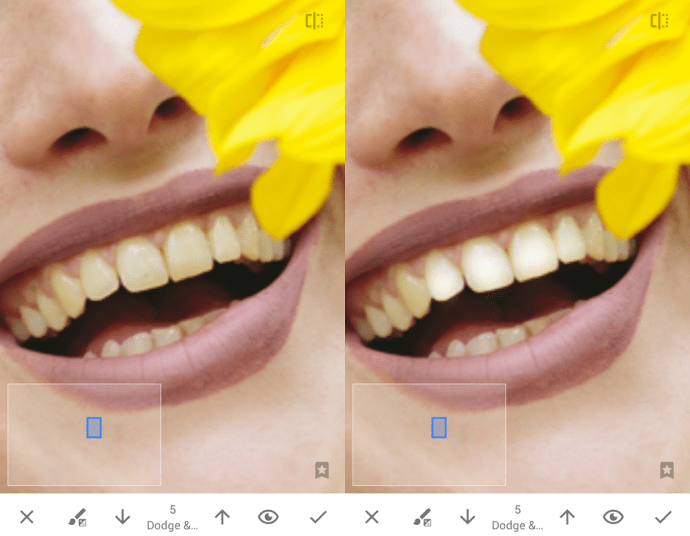 White teeth with rapeseed
