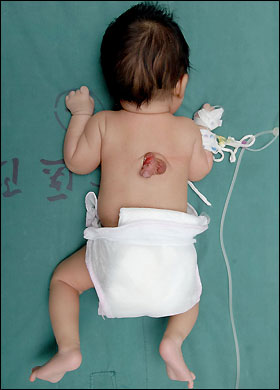 baby born with penis on his back