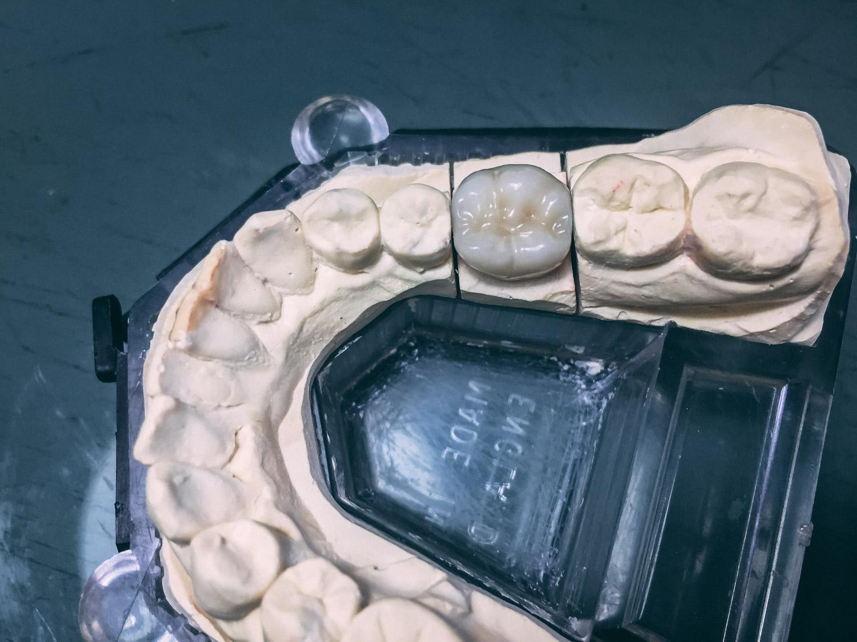 Protesi 5 - Laboratorio Odontotecnico TechnoDental