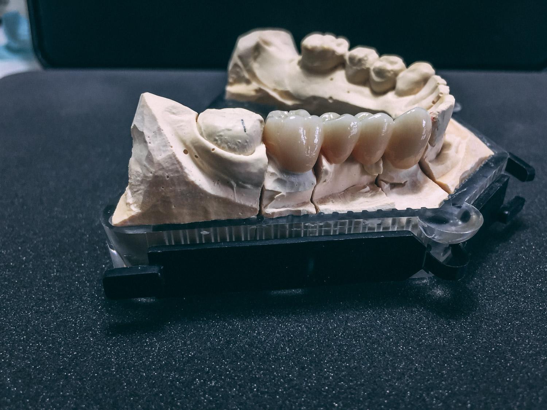 Protesi 4 - Laboratorio Odontotecnico TechnoDental