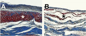 Microscopic images of pig hearts damaged by heart attack show the growth of new heart muscle tissue (Shown in Red, Figure A) after treatment with an injectable hydrogel compared to a heart left untreated (Figure B, right). Photo credit: Karen Christman, UC San Diego Jacobs School of Engineering.
