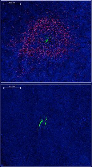 technology lets researchers test live tumors to see whether a small injection of a particular cancer drug (green) will work. The red marks show tumor cells succumbing to a drug. The drug is working in the top image, but not in the bottom one.