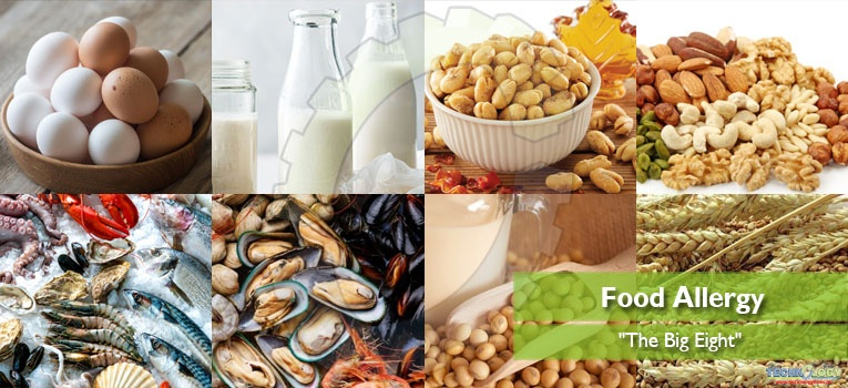 Food Allergy The Big Eight