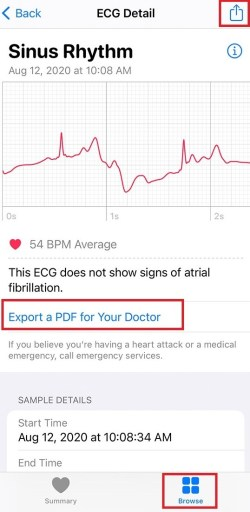View and Share ECG results