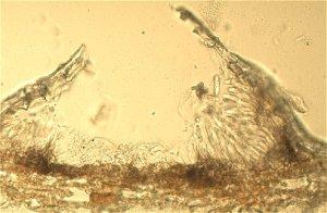 Colletotrichum gloeosporioides en citricos