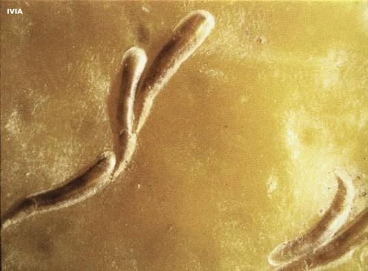 Serpeta gruesa, (Lepidosaphes beckii), Serpeta fina, (Lepidosaphes gloverii), Piojo gris, (Parlatoria pergandei), Piojo negro, (Parlatoria ziziphi), Piojo rojo (Chrysomphalus dictiospermi), Piojo blanco, (Aspidiotus nerii), Piojo San José, (Quadraspidiotus perniciosus)