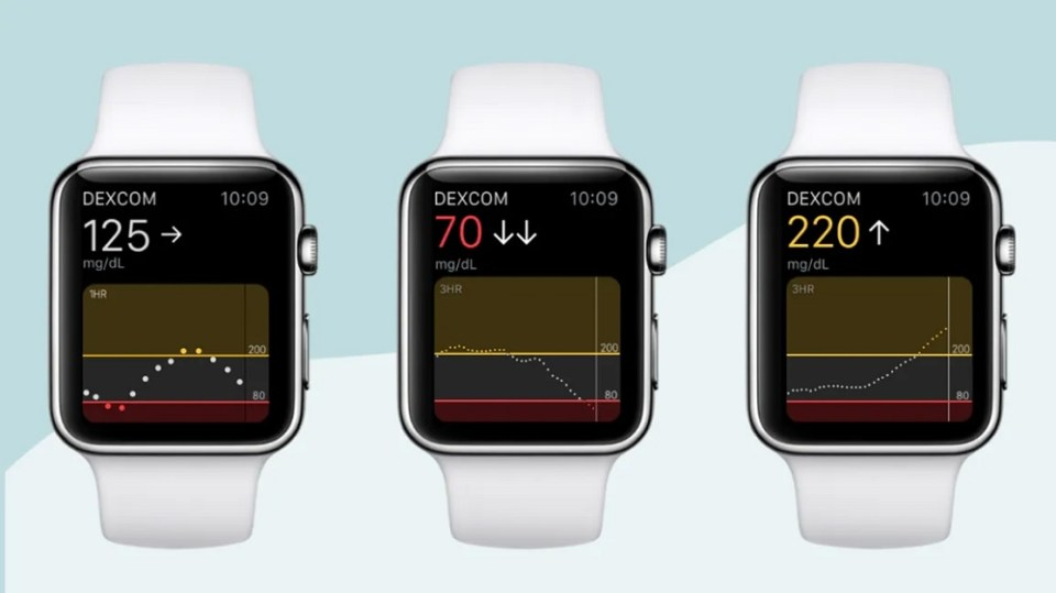 Dexcom tiene todo: reloj inteligente y medición de azúcar en sangre