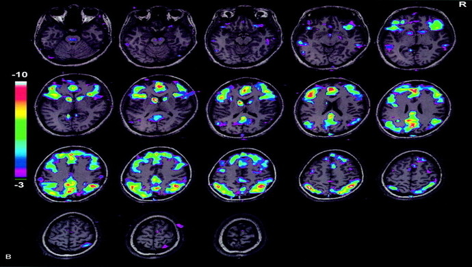 Mineração de dados  Técnicas de mineração de dados podem ajudar no diagnóstico de doenças mentais, revela pesquisa da USP ressonancia funcional 2