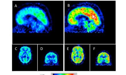 Obesità: una molecola per il diabete spegne l'appetito, lo studio del CNR di Pisa