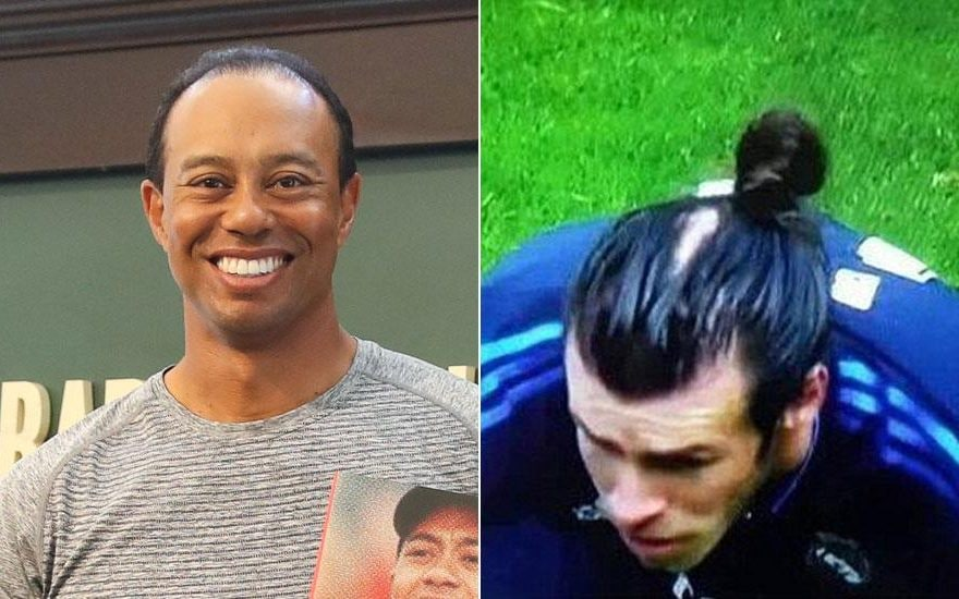 The Hairy Reality Of Balding Sportsmen From Tiger Woods