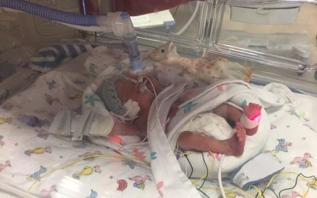 21 Weeks Stillbirth Pregnant