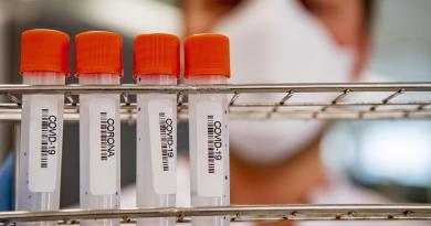 """Covid, Garattini: """"Non finirà nel 2021, giusto aiutare a produrre vaccini"""""""