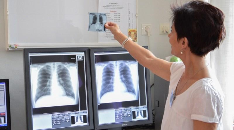 Tüdőszűrés a gyógyászati központban. Fotó: Szaffenauer Ferenc/Paksi Hírnök